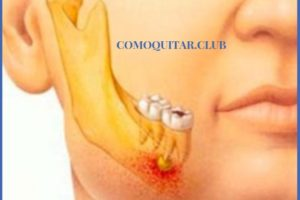 cirugía dental e implante dental causas y tratamiento